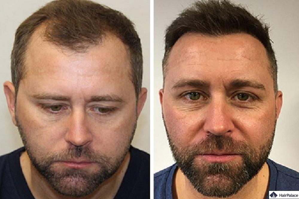 Haartransplantation mit FUE