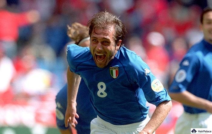 Antonio Conte Haartransplantation im 2000