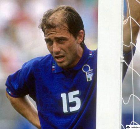 Der junge Antonio Conte vor seiner Haartransplantation