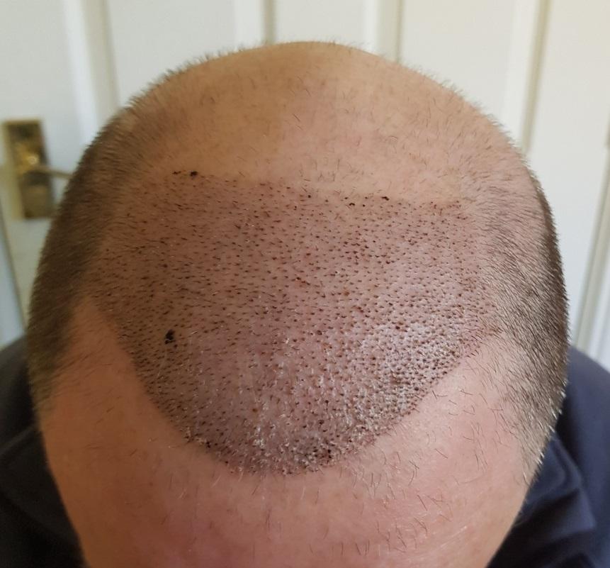 1 Woche nach Haarimplantation