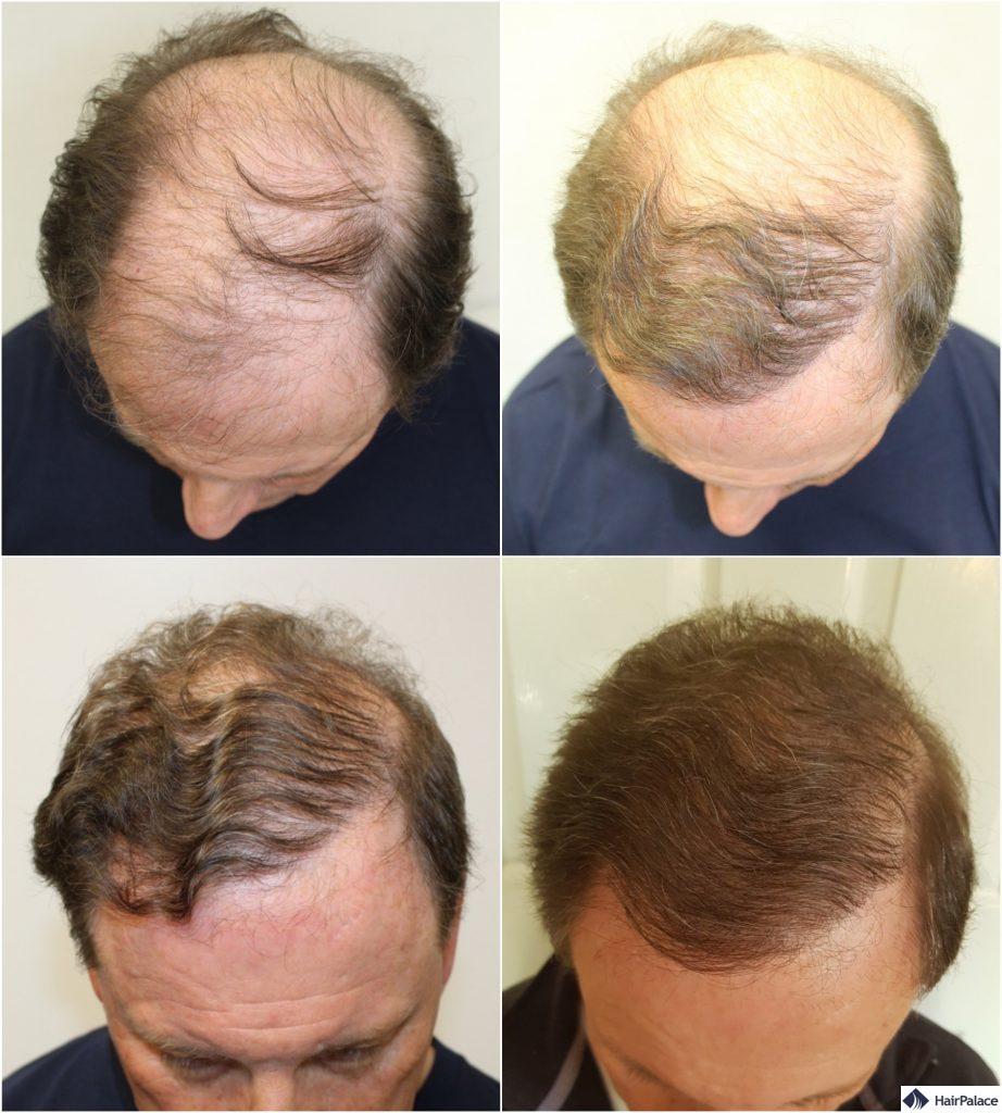Derek Haarimplantat vorher und nachher