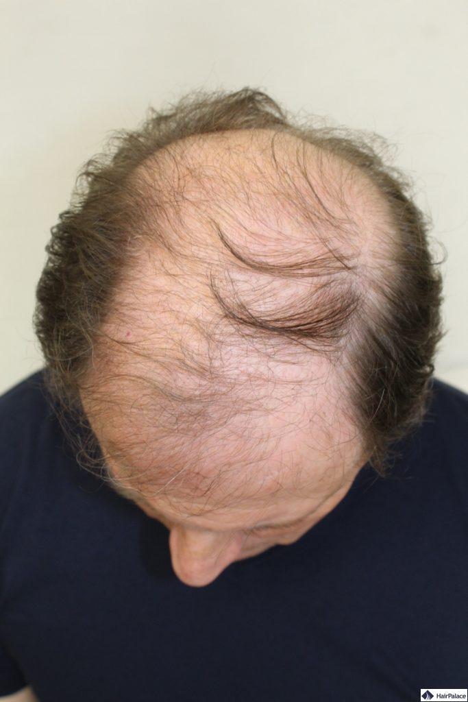 Glatzenbildung Kopfhaut vor der Implantation