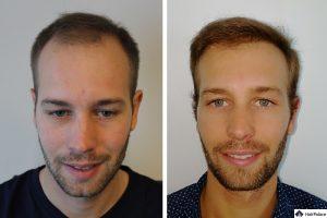Dortmund Ergebnis der Haartransplantation