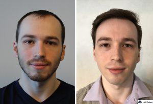 Hannover Ergebnis der Haartransplantation