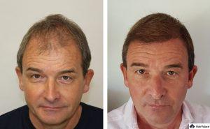 Kiel Ergebnis der Haartransplantation