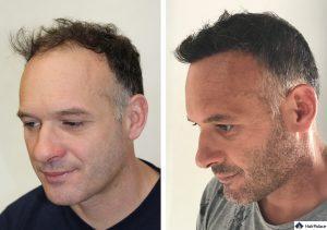 Leipzig Ergebnis der Haartransplantation