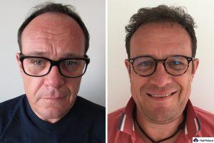 Nürnberg Ergebnis der Haartransplantation