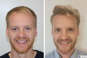 Stuttgart Ergebnis der Haartransplantation