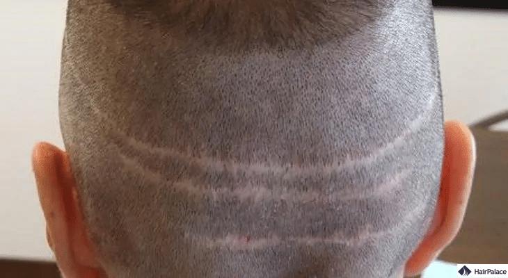 FUT Haartransplantation narben