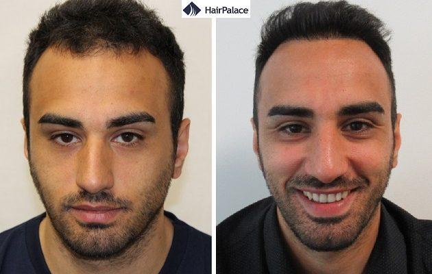 Ist eine Haartransplantation dauerhaft?