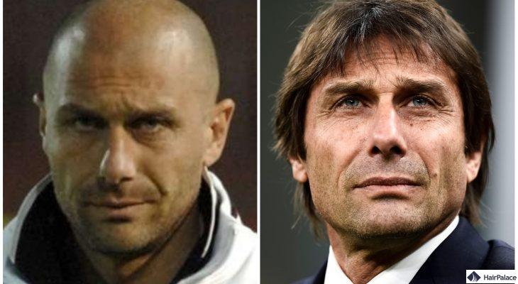 Antonio Conte vor und nach der FUE2-Haartransplantation