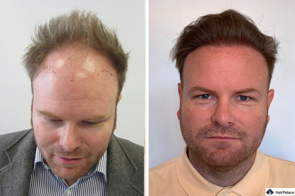 david-ergebnis-der-haartransplantation