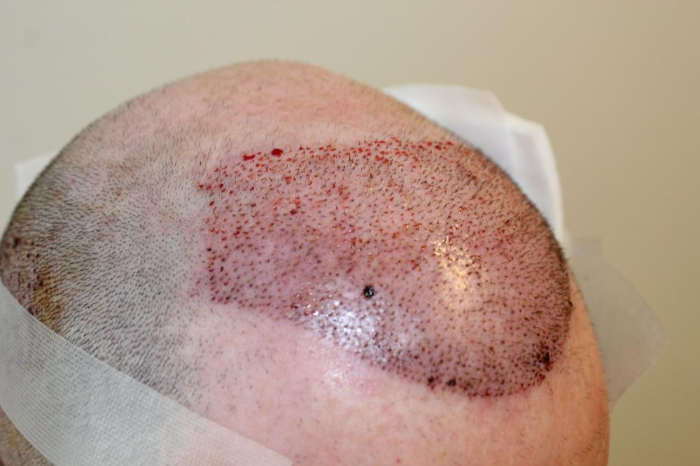 Dereks Haarimplantation