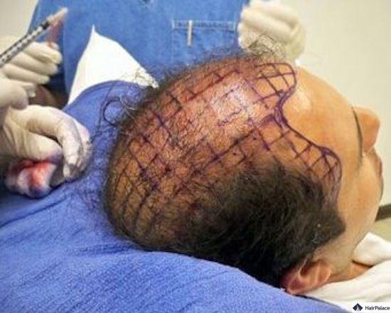 Behandlung mit Stammzellen-Haartransplantation