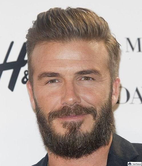 David Beckham möglicherweise nach Haartransplantation