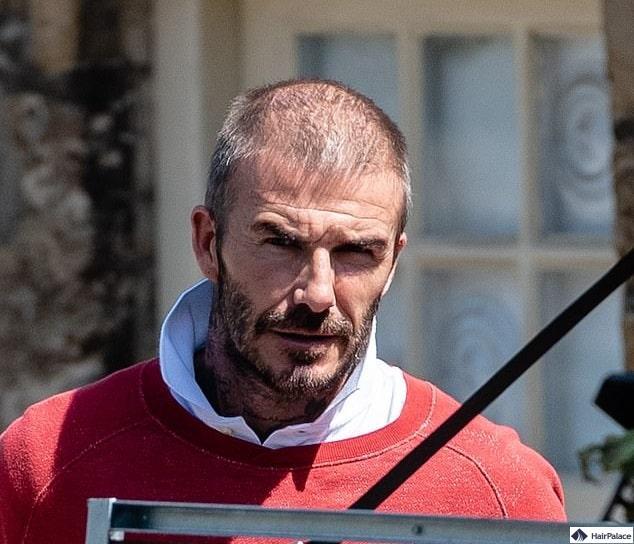 David Beckham Haartransplantationsgerüchte 2020