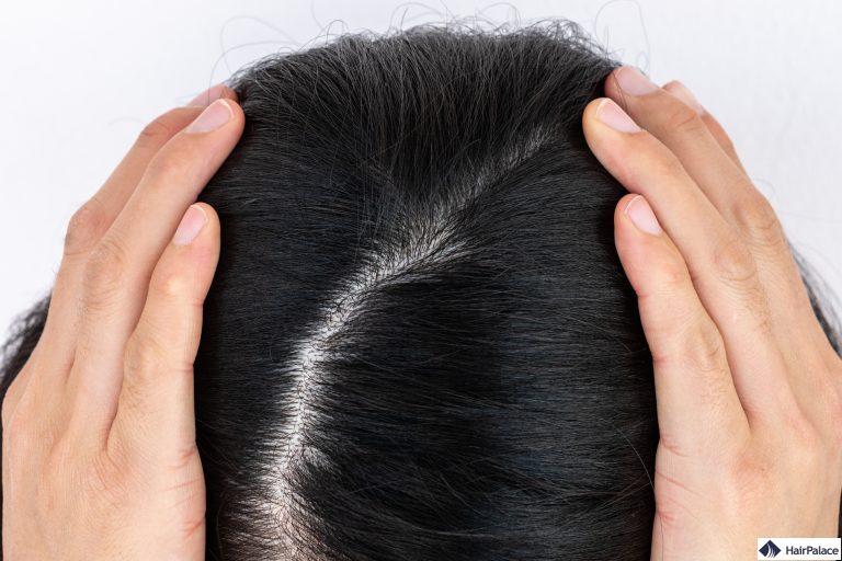 genetisch bedingter Haarausfall kann zu einen lichten, breiten Scheitel führen