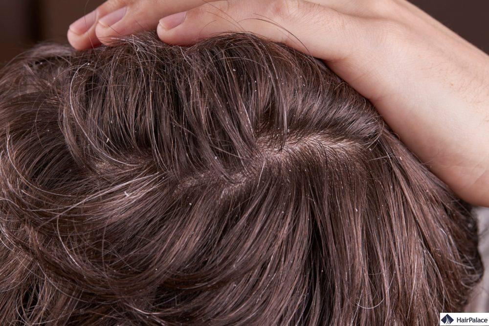 Schuppen sind ein häufiges Problem, das die Kopfhaut betrifft