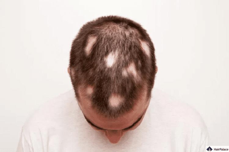 Bei Alopecia areata fallen die Haare stellenweise aus
