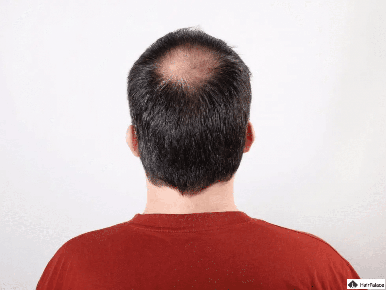 Glatzenbildungam Scheitel
