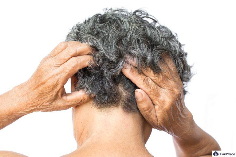 juckende Kopfhaut ist ein mögliches Anzeichen für Glatzenbildung