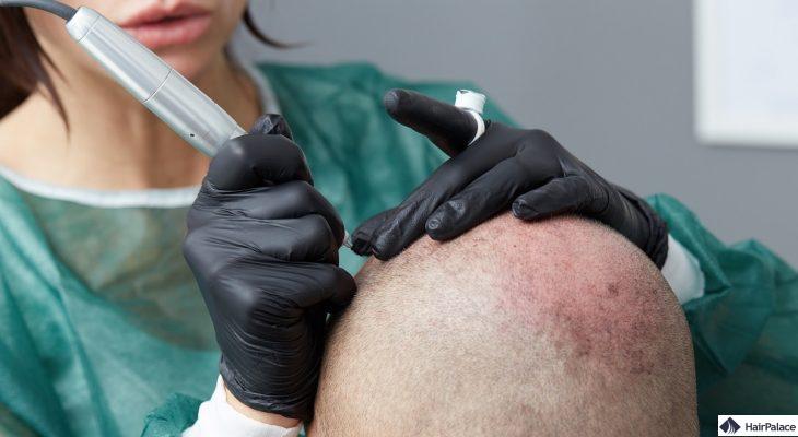 mikropigmentierung-der-kopfhaut-bei-haarausfall