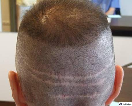 Narbenbildung im Spenderbereich nach FUT-Haartransplantation