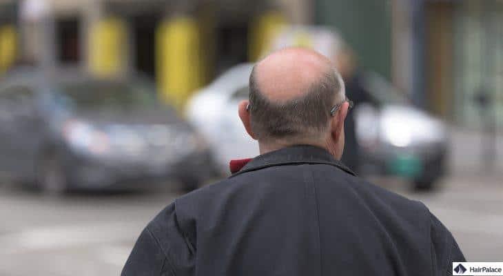 WAY-316606 Behandlung von Haarausfall
