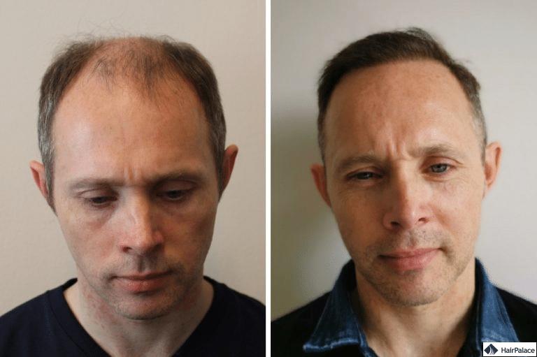 Haartransplantation ergebnis