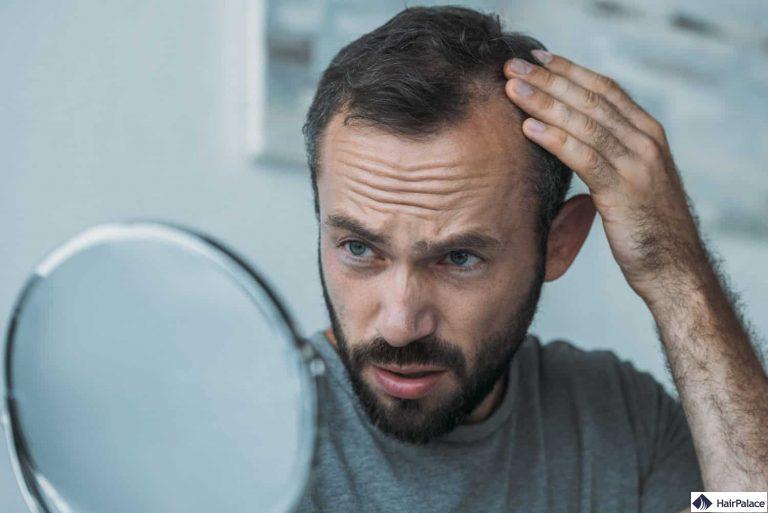zurückweichender Haaransatz ist auch ein Symptom