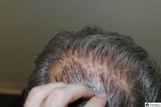 Transplantierte Hair Plugs