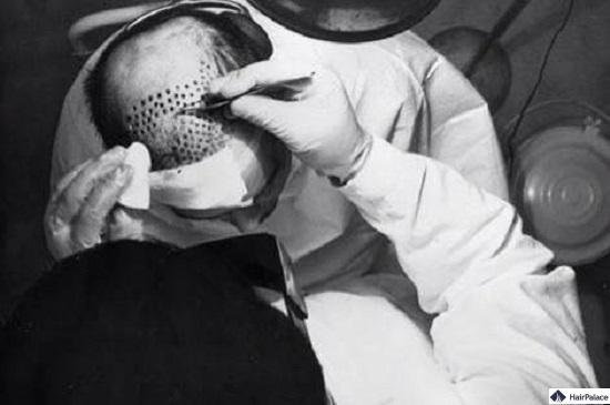 Hair Plugs Methode von Dr. Norman Orentreich