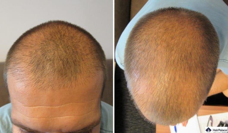 Sichtbar dünne haare kopfhaut Sehr feine