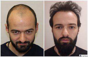 Aachen Ergebnis der Haartransplantation