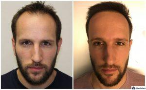Bochum Ergebnis der Haartransplantation