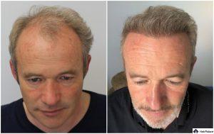 Bonn Ergebnis der Haartransplantation