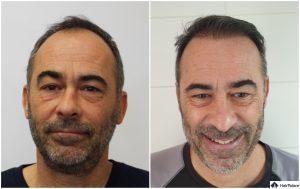 Darmstadt Ergebnis der Haartransplantation