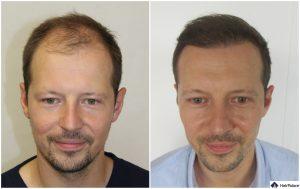 Erfurt Ergebnis der Haartransplantation