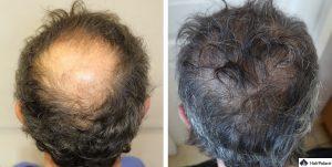 Karlsruhe Ergebnis der Haartransplantation