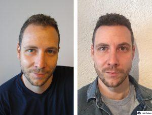 Mannheim Ergebnis der Haartransplantation