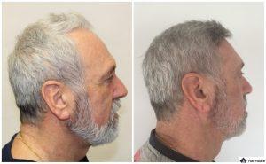 Oldenburg Ergebnis der Haartransplantation
