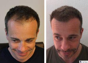 Potsdam Ergebnis der Haartransplantation