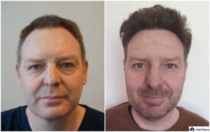 Wiesbaden Ergebnis der Haartransplantation