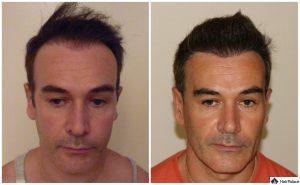 Wuppertal Ergebnis der Haartransplantation