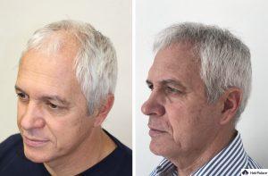 Bremen Ergebnis der Haartransplantation