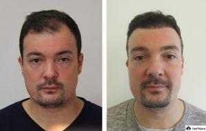Heidelberg Ergebnis der Haartransplantation