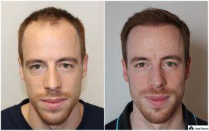 Mönchengladbach Ergebnis der Haartransplantation