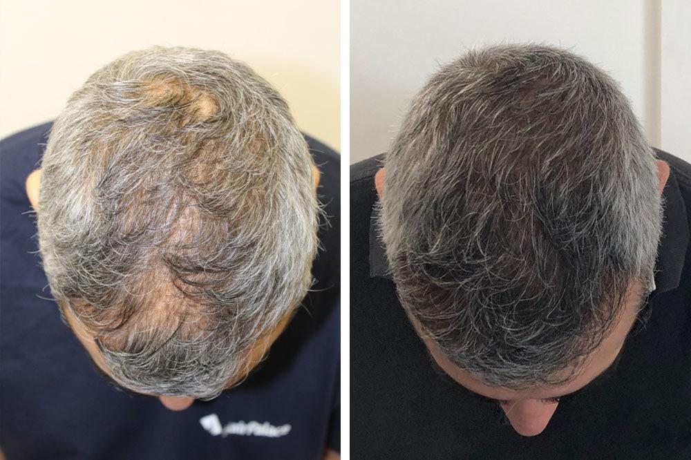erschwingliche-fue-haartransplantation