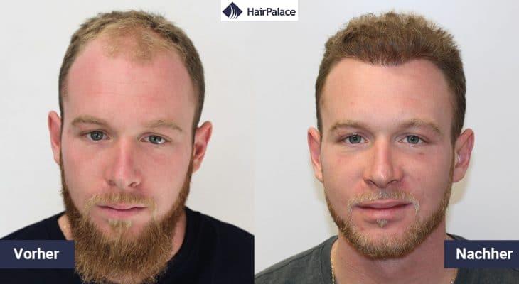 jeremy haartransplantation