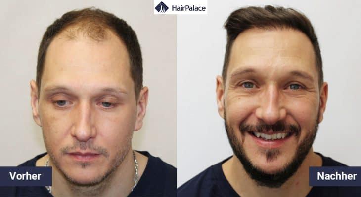 jessy haartransplantation